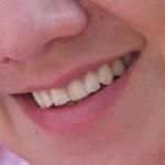 Ortodoncia en Marbella