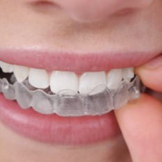 Ortodoncia en Mijas