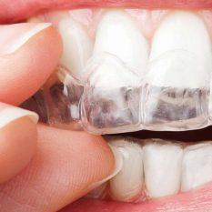 Ortodoncia invisible en Malaga