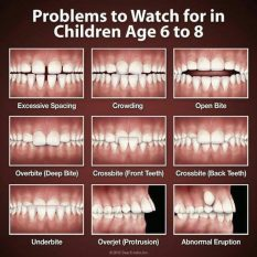 Problemas ortodoncicos niños