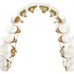 ortodoncia invisible malaga