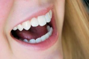 Ortodoncia en Torremolino