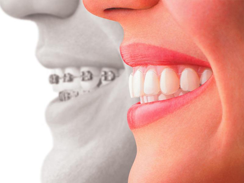 Ortodoncia con alineadores