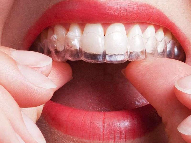 Alinear tus dientes en Málaga y Torre del Mar